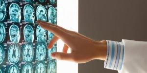 Obat Tradisional Kanker Otak